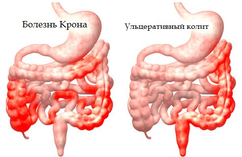 Crohns disease and ulcerative colitis