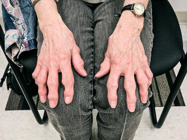 ревматоидный артрит индекс das28
