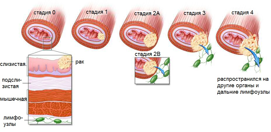 Breast cancer staging form 2010