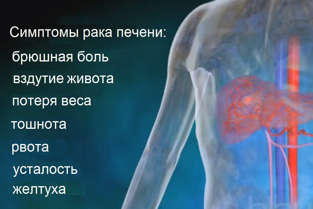 symptoms of liver cancer